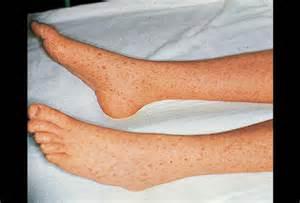 skin picture picture 9