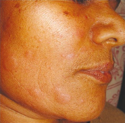face herpes pictures picture 1