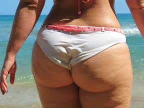 ass cellulite picture 14