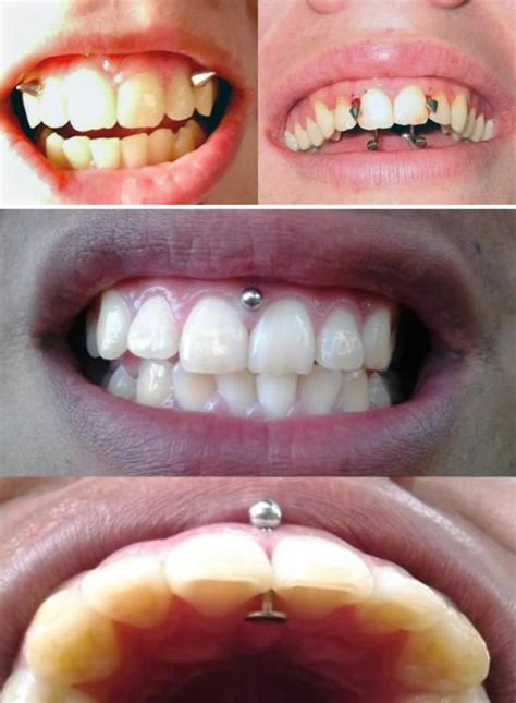 gap in the front teeth picture 9