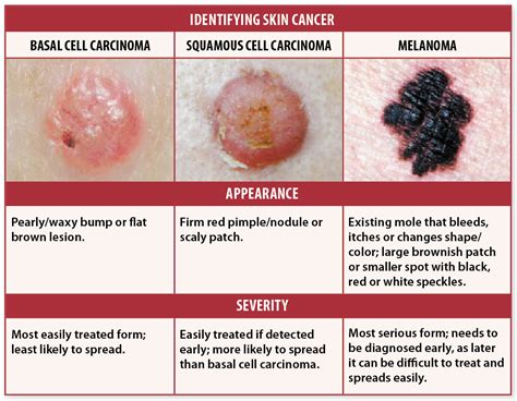 skin cancer signals picture 6