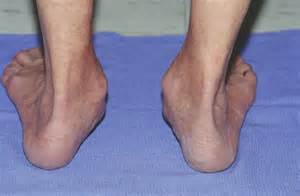 what is flat warts picture 14