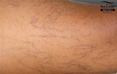 small red spider veins under skin of monis picture 13