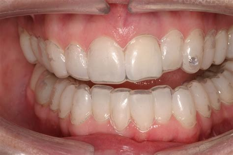 whiten teeth without perioxide or bleach picture 11