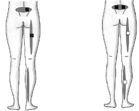 tens machine electrode placement for sexual pleasure picture 5