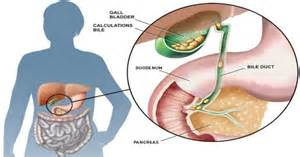 gall bladder health problems picture 3