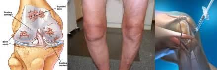 degenerative joint disease picture 5