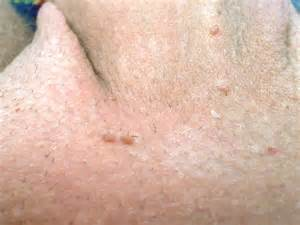 warts on edge of penis head picture 14