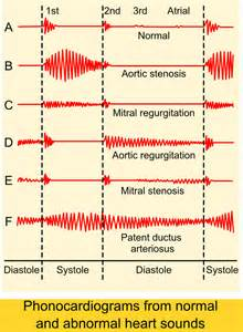 abnormal ekg and high blood pressure picture 11