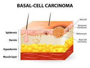 can ultraviolet light cause skin cancer picture 3