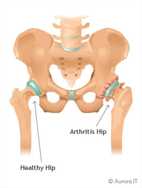 hip pain relief picture 6