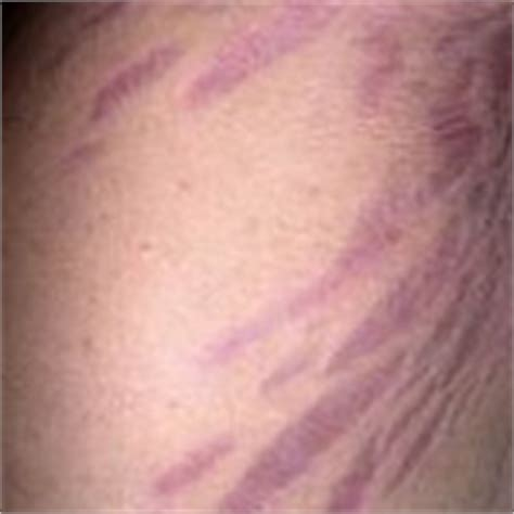 black stretch marks picture 10