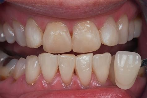 childrens teeth discoloration and veneers picture 10