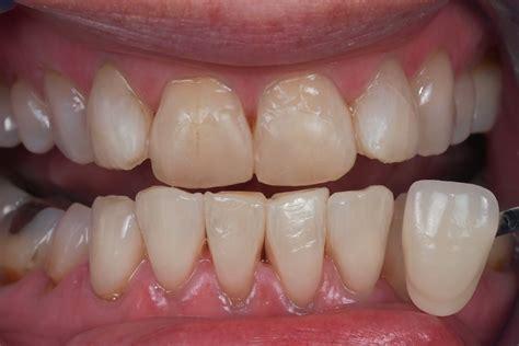 discolored teeth enamel effacia picture 14