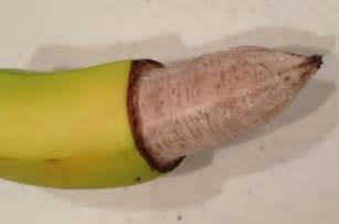 pics of partial circumsized penis picture 6