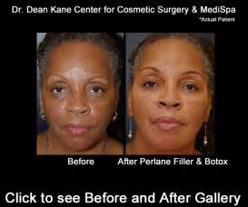 african american skin microdermabrasion picture 10