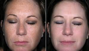 skin care for melasma picture 14