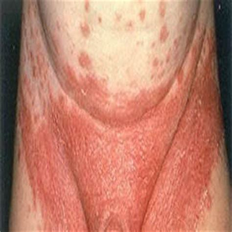 yeast infection penis picture 17