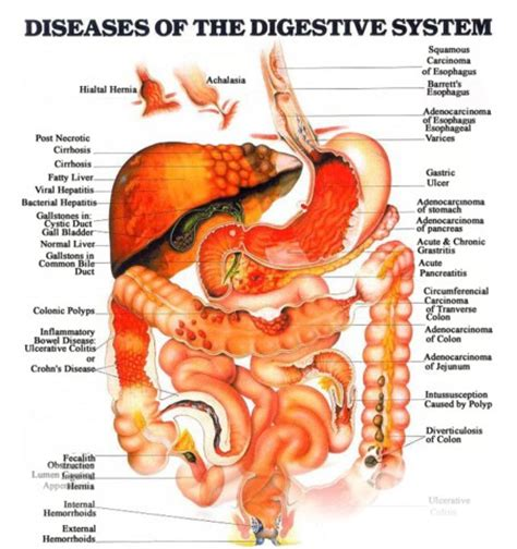 colon disorders picture 3