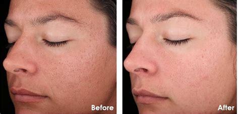 acne cream ingredient retin picture 18