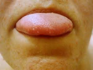 white dots tongue from herpes simplex picture 12