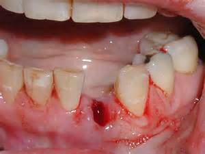 tooth extraction picture 1