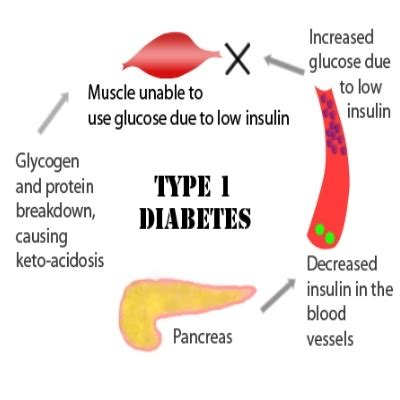 herbal cure for diabetes type 1 picture 1