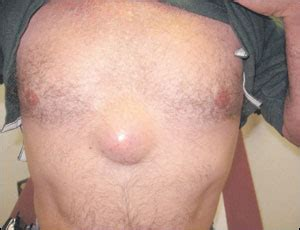 cyst in the muscle wall picture 2