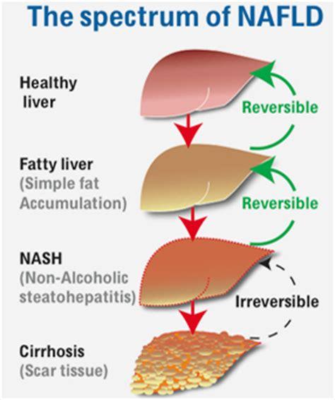 reversing liver damage picture 10