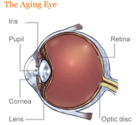 ocular aging and eye pain picture 10