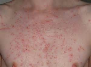 hives on els picture 21