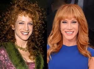 kathy griffin weight loss picture 2