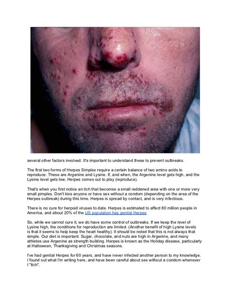 will herpes spread during picture 1