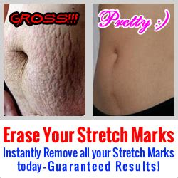 cosmetic surgery stretch mark removal picture 11