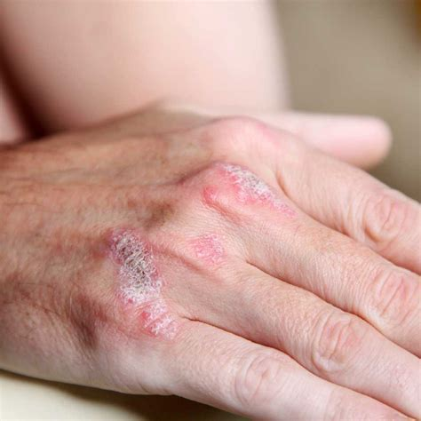 flaky skin on hands picture 6
