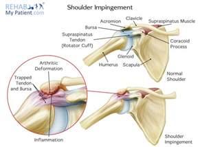 joint impingement syndrome shoulder diagnosis treatment picture 2