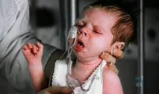 fever, stumach, caugh liver failure picture 1