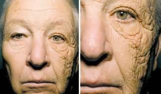 skin under balck light sun damage picture 12