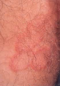 what does a yeast infection looks like - picture 9