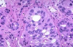 prostatic adenocarcinoma picture 3
