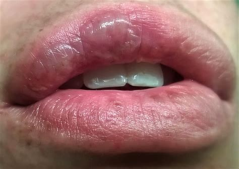 help with big lip picture 1