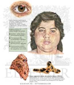 endocrine skin diseases picture 5