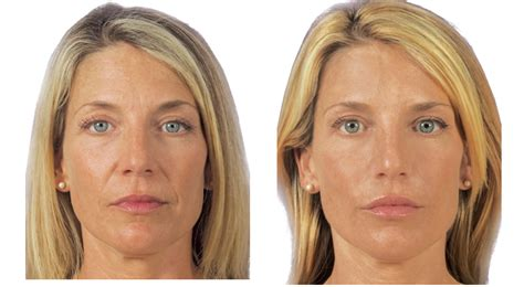 cosmetic surgery stretch mark removal picture 17