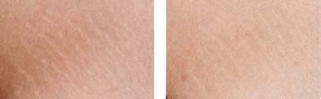 skinpen for stretch marks picture 9