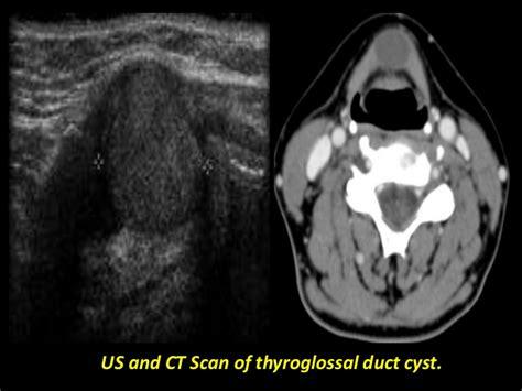 echogenic foci thyroid picture 10