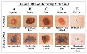 skin cancer warning signs picture 9