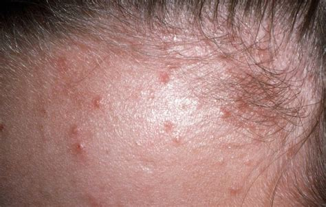yeast infection and folliculitis picture 2
