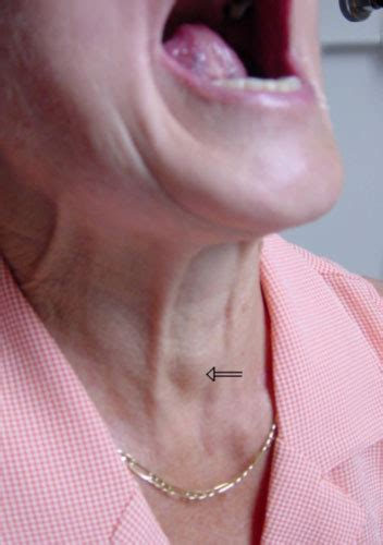 cyst throat thyroid picture 7