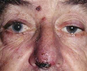 what are herpes shingles picture 6