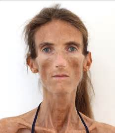 anorexic with loose skin picture 11